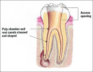 Root Canal Therapy   ECO Dental